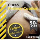 Implante de cabelo em Santo André