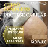 Implante de cabelo em Osasco