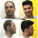Implante de cabelo masculinoem Osasco
